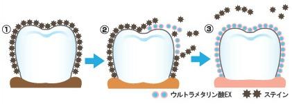 国際特許成分「ウルトラメタリン酸EX」のホワイトニング効果