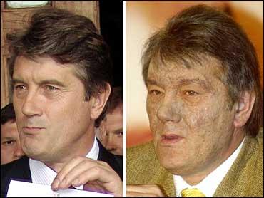 Viktor Yushchenko Dioxin Poisoning