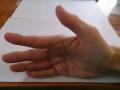 患側(右)で示指と親指を上にあげるように開く