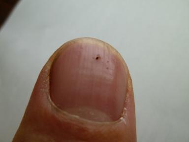 親指の爪に命中