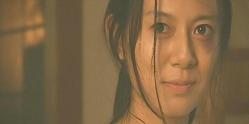 (ナレーション)琴子さんの目の周りには痣ができていた