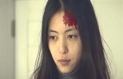額から血が出ているフランチェス子