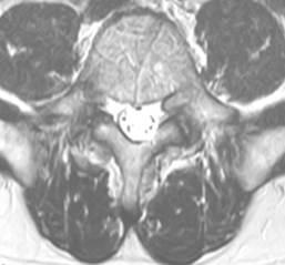FS PREOP MRI AXI L4-5 VF