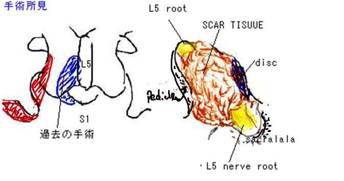 術後椎間孔狭窄 手術所見