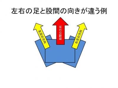 左右の足の向きが違う例