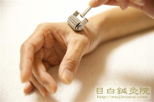 ローラー鍼20140519目白鍼灸院