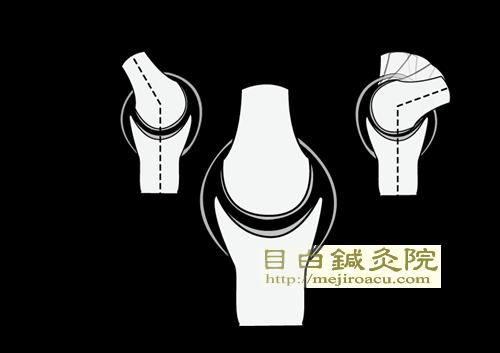 20140523ウーマンエキスポ東京1関節