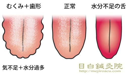 歯形舌・ギザギザ舌・歯痕舌(しこんぜつ)20140625