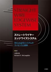 ストレートワイヤーエッジワイズシステム