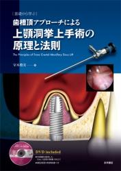 上顎洞挙上手術の原理と法則
