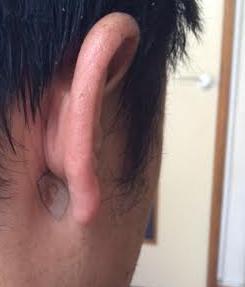 20140603耳の後ろにもファイテン