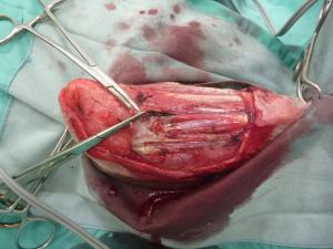 血管外膜細胞腫 術中 1